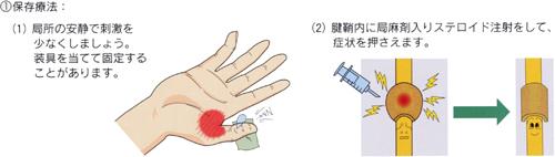ばね指_04