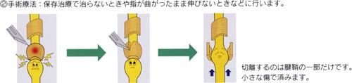 ばね指_05
