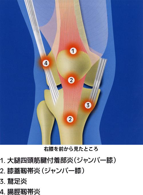 膝の慢性疼痛_04