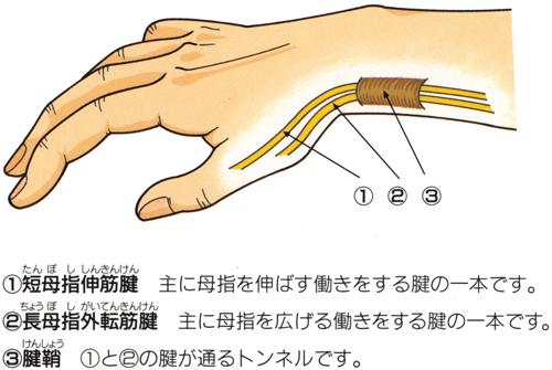 ケルバン腱鞘炎_02