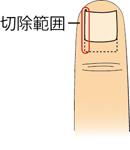 陥入爪_02