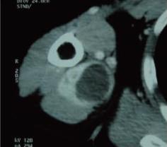 軟部腫瘍_06