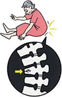 脊椎圧迫骨折_01