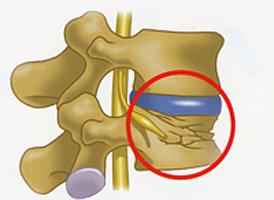 脊椎圧迫骨折_02