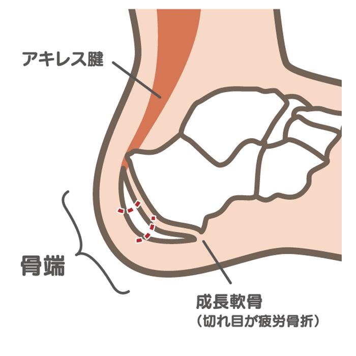 シーバー病_01