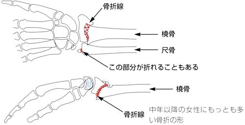 撓骨遠位端骨折_03
