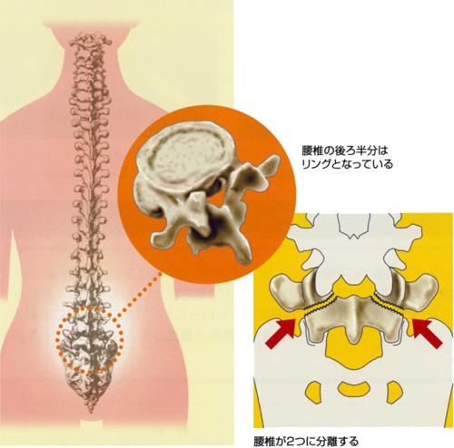 腰椎分離症_01