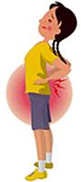 腰椎分離症_03_1