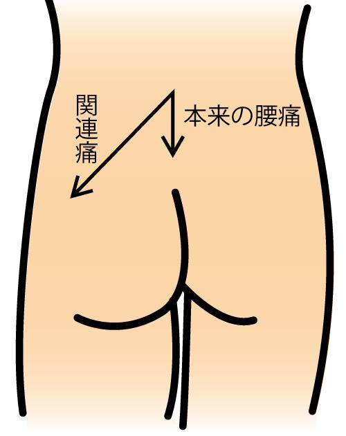 腰椎間関節症_02